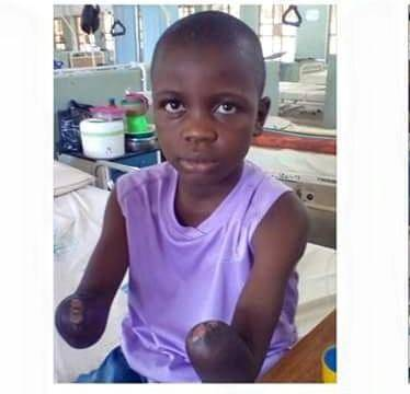 School Boy Gets Artificial Hands After Losing Hands To Teacher's Brutality
