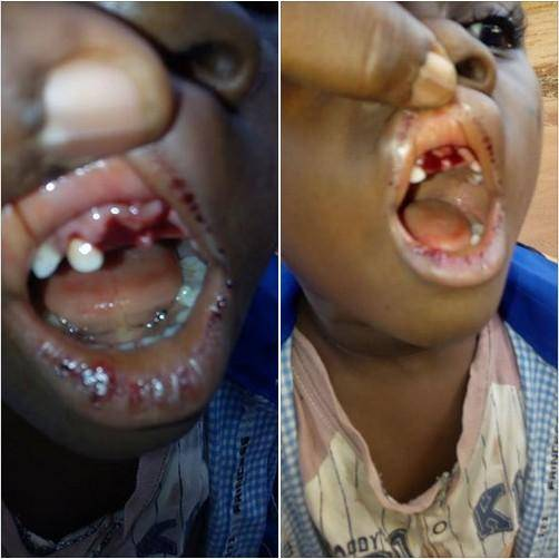 See What A Teacher Did To A 4-Year Old Pupil
